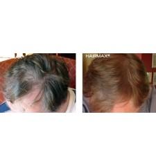 HairMax lasercombe ADVANCED 7