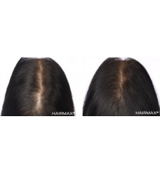 HairMax lasercombe ADVANCED 7