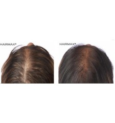 HairMax - lasercombe LUX 9