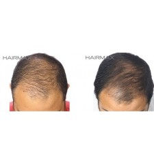 HairMax - Professional lasercombe 12