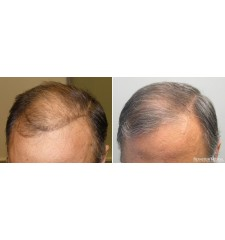 Rogaine (Regaine) pour hommes ® mousse 5% minoxidil - 3 mois